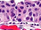 #thelancetoncology #cancerurothelial #PD-L1 #nivolumab Nivolumab pour traitement carcinome urothélial métastatique après thérapie base platine (CheckMate 275) étude multicentrique phase simple bras