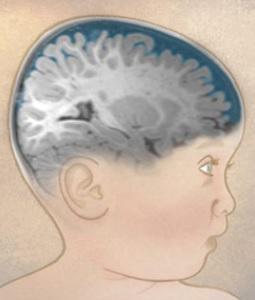 AUTISME : Le LCR, un marqueur prometteur  – Biological Psychiatry