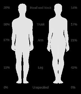 #thelancetoncology #mélanome #NRAS #binimetinib #dacarbazine Binimetinib versus dacarbazine chez des patients atteints de mélanome avancé présentant une mutation sur le gène NRAS (NEMO) : essai multicentrique ouvert randomisé de phase 3