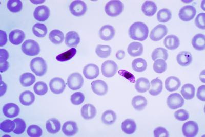 #thelancetinfectiousdiseases #malaria #Plasmodiumfalciparum #mefloquine #DSM265 Sécurité, tolérance, pharmacocinétique, et activité Du nouvel antimalarique DSM265 à longue durée d'action : première étude randomisée de phase 1a/1b en deux parties effect...