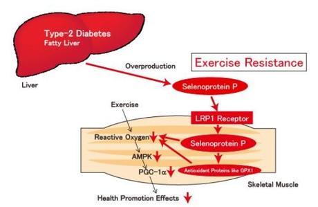 OBÉSITÉ, DIABÈTE :  Pourquoi l'exercice n'a pas sur tout le monde les mêmes effets  – Nature Medicine