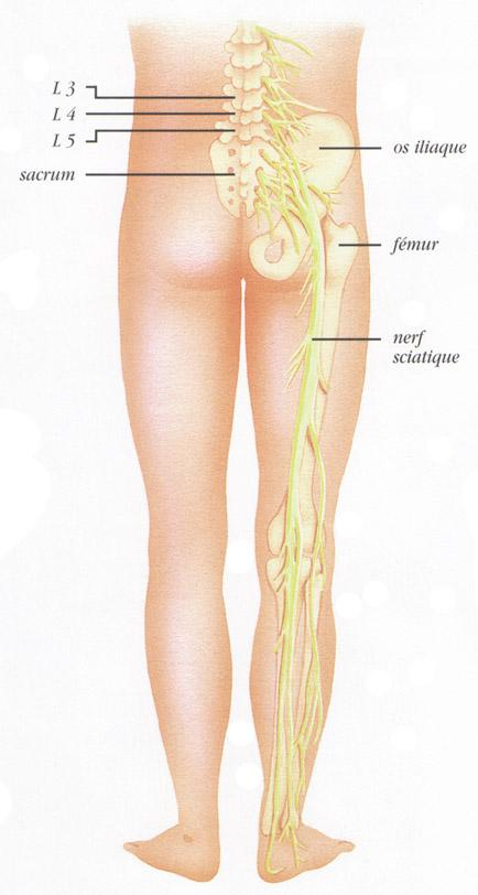 Traitement pour douleur dorsale et sciatique
