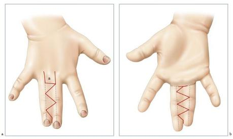 Syndactylie des doigts