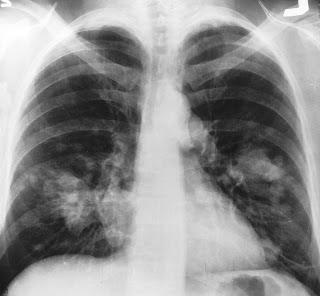 #thelancetoncology #CBNPC #avelumab Avelumab chez des patients atteints d'un cancer du poumon non à petites cellules métastatique ou récidivant précédemment traité (JAVELIN Solid Tumor) : Essai multicentrique ouvert de phase 1b (cohorte d'expansion de ...