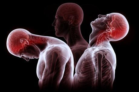 Manifestations d'une radiculopathie cervicale