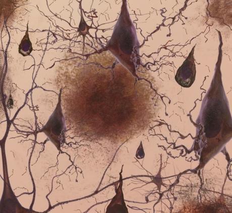 ALZHEIMER : Le gène courant qui accumule Tau avec l'âge – Molecular Psychiatry