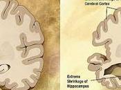 #thelancetneurology #troublescognitifs #alzheimer #βamyloïdose #tauopathie #neurodégénérescence #épaisseurcorticale Prévalence d'une β-amyloïdose, tauopathie, neurodégénérescence spécifique l'âge sexe chez sujets