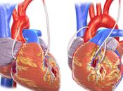 #thelancetdiabetesandendocrinology #lipoprotéinea #variantsgénétiques #LPA #maladiecardiaquecoronarienne Relations entre concentrations lipoprotéine (a), variants génétiques LPA, risque mortalité chez patients avec maladie cardiaque cor...
