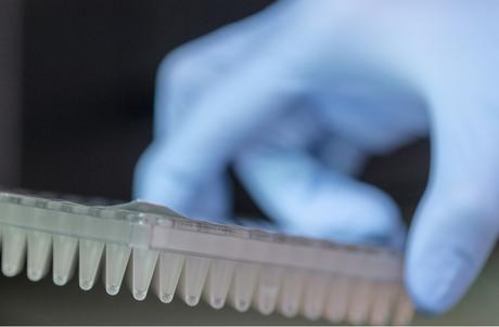 CANCER de la PROSTATE : Le test sanguin qui prédit la résistance de la tumeur
