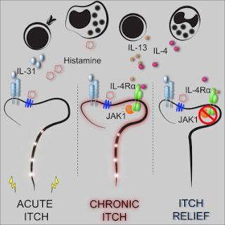 #cell #neuronesensitif #immunité #voiedesignalisation #JAK Les neurones sensitifs cooptent les voies de signalisation classiques de l'immunité relayant les démangeaisons chroniques