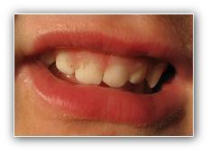 traitements précoces en orthodontie
