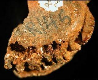 La plus ancienne infection humaine découverte sur d'anciens ossements