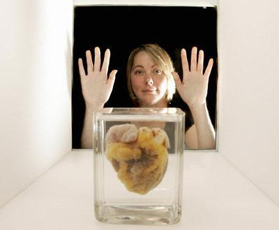 Le commerce des organes