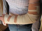 causes douleurs bras