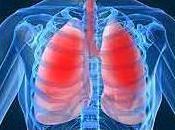 ASTHME: Pilule inhalateur, quel meilleur? England Journal Medicine