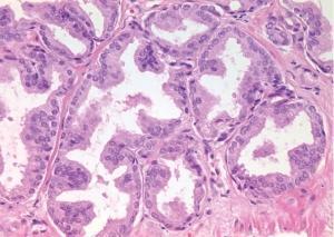 CANCERS: Une nouvelle approche pour les vaccins thérapeutiques  – Nature Medicine
