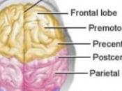 MIGRAINE injections stéroïdes confirment leur efficacité Lancet Neurology