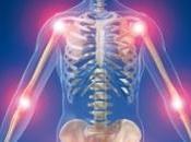 Arthrose médicament existant pourrait réparer articulations