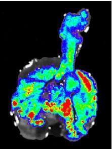 GRIPPE: Les cellules natural killers pour prévenir les lésions pulmonaires  – Journal of Leukocyte Biology