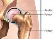 PROTHÈSES HANCHE: Taux d'échec élevé pour implants Métal Lancet