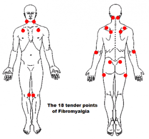 fibromyalgie points douloureux
