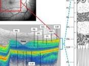 SCLÉROSE plaques: L'œil, fenêtre ouverte cerveau Lancet Neurology Archives