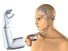 première prothèse bras robotisée contrôlée pensée