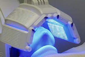 La lumière bleue est déjà utilisée en dermatologie, pour combattre l'acné