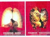 Fumeurs cigarettes…
