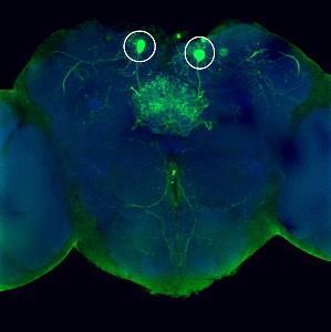 OBÉSITÉ: Ces neurones qui nous poussent aux choix alimentaires – The Journal of Neuroscience