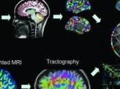 ÉPILEPSIE: cerveau privé mode défaut Radiology