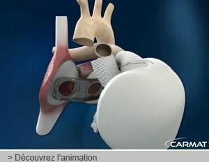 PREMIÈRE MONDIALE: Implantation d'un cœur artificiel à l'AP-HP – Carmat-Ministère