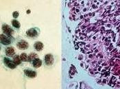 Docetaxel nintedanib versus docetaxel placebo chez patients préalablement traités pour cancer poumon petites cellules (LUME-Lung essai phase double-aveugle, randomisé contrôlé