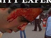 homme blessé demande l'aide (Inde)