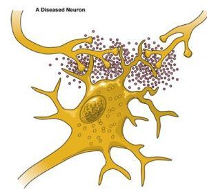 PARKINSON: Un anti-inflammatoire au secours des neurones – Journal of Parkinson's Disease