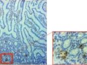 VIH: cellules intestinales complices l'infection PLoS Pathogens