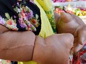 Duangjay Samaksamam plus grandes mains monde