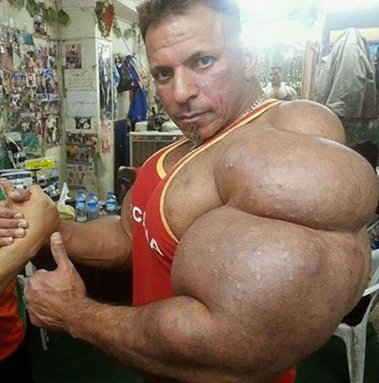 Synthol muscles horrible