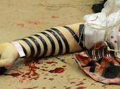 ATTENTAT JÉRUSALEM. Violence: choc photos, l'horreur plein lieu culte