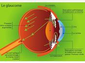 #latanoprost #glaucome Latanoprost pour glaucome angle ouvert (UKGTS) étude multicentrique, randomisée contrôlée placebo
