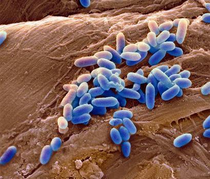 fibrose cystique mucoviscidose