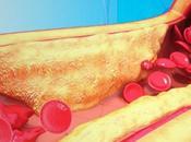 Curcumine contre cholestérol triglycérides