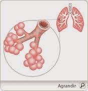 Comment soigner bronchite aigüe naturellement