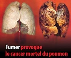 cancer_poumon