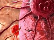 Guérison cancer l'alimentation: fondements l'alimentation alcaline