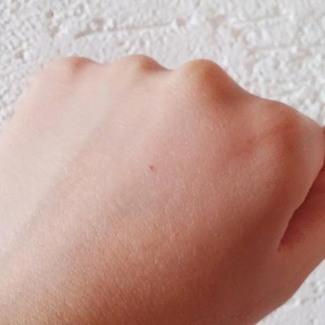 De l'acide hyaluronique pour des mains de princesse