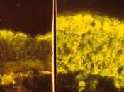 #thelancetrespiratorymedicine #fibrosekystique #mucoviscidose #CFTR #ivacaftor Efficacité sécurité l'ivacaftor chez patients atteints mucoviscidose porteurs d'une mutation Arg117His-CFTR essai randomisé contrôlé