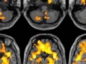 TOXICOMANIE: Elle réduit volume cerveau. Surtout chez femmes Radiology