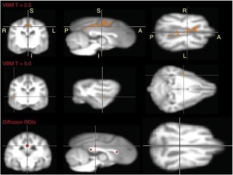 Comparaison d'IRM de cerveaux canins révélant les zones affectées chez les chiens atteints de TOC
