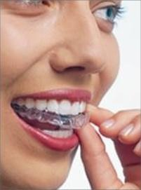 ORTHODONTIE: L'alternative sans métal, invisible et numérique – Innovation